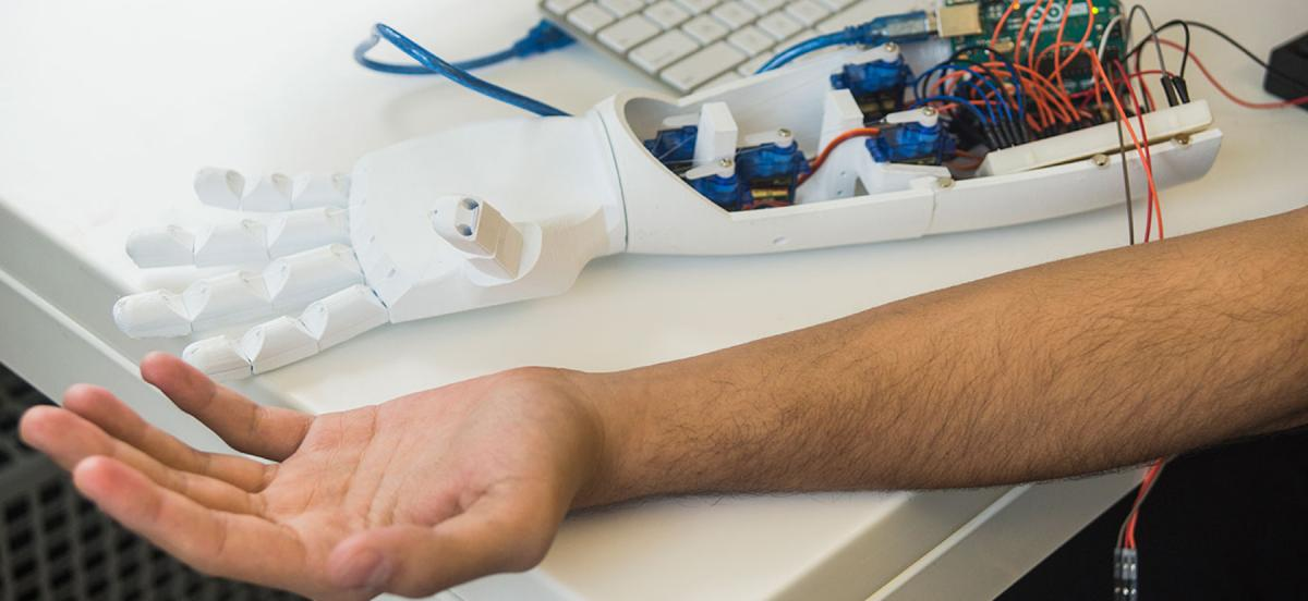 Robotic prosthetic arm next to Mohamed Ali's arm and a computer