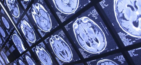 Neuroscience Minor